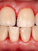 Профессиональная гигиена полости рта.