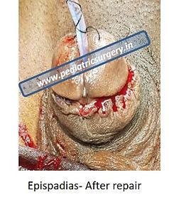 epispadias surgery