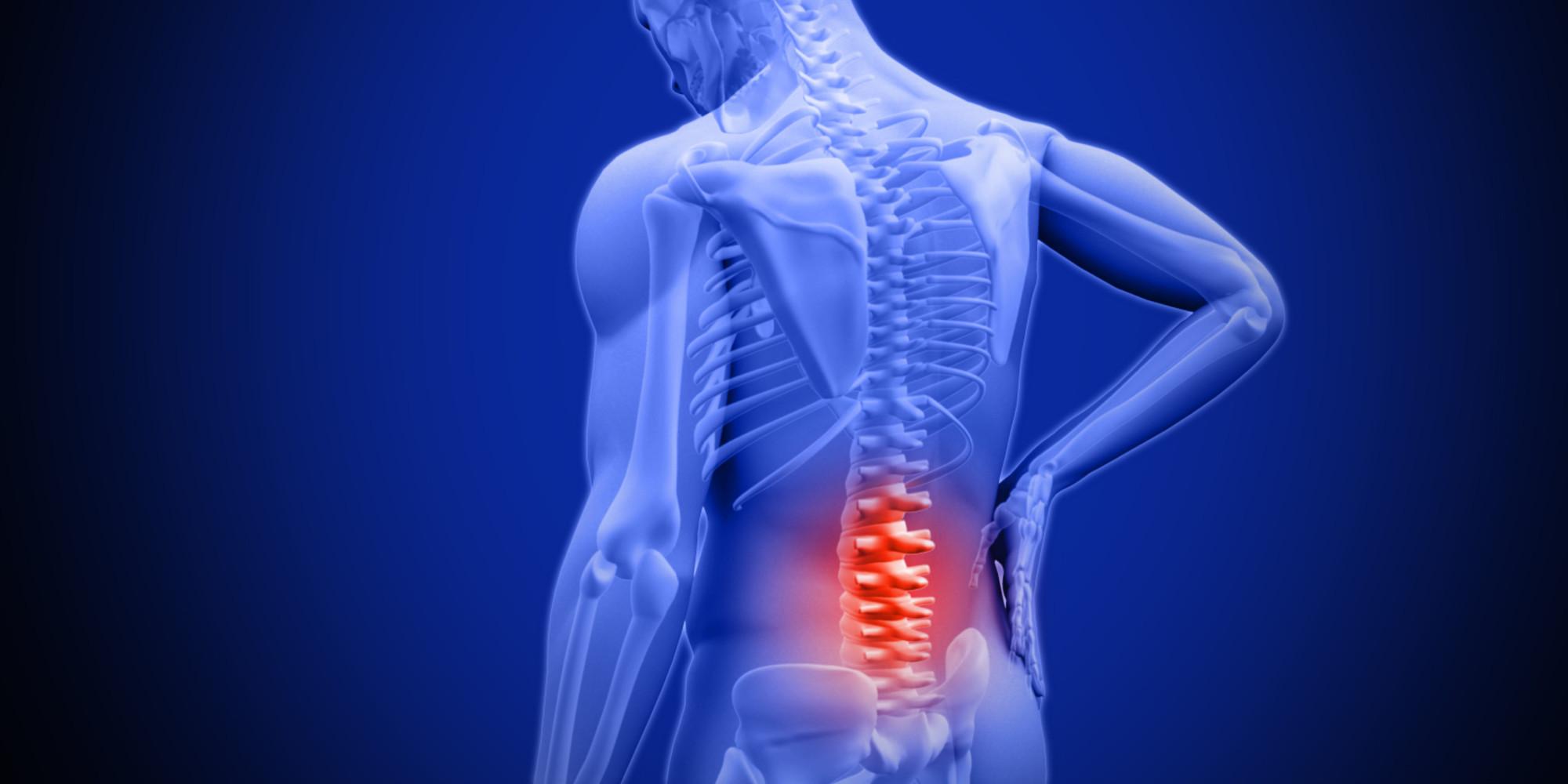 Spine Surgery: