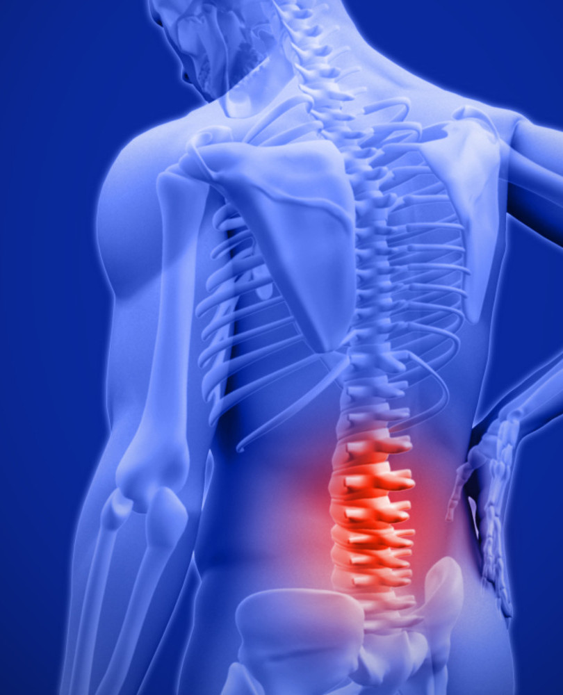 Spine Surgery: