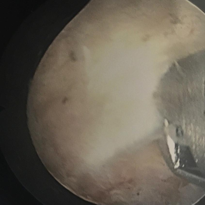 Removing Ligamentum Flavum