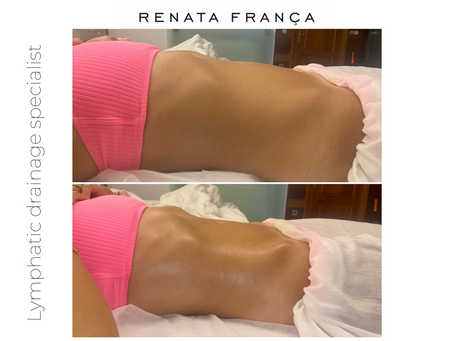 Lymphatic Drainage Massage Renata Franca Method - Results after 60 mins