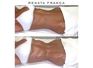 Lymphatic Drainage Renata Franca Ibiza