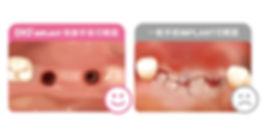 手術切開面對比-導版設計-植牙-數位微創