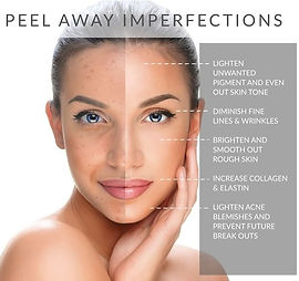 Chemical Peels are the secret to perfect