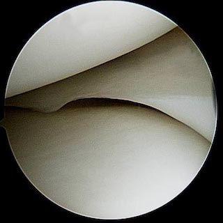 Normal Knee scope.jpg