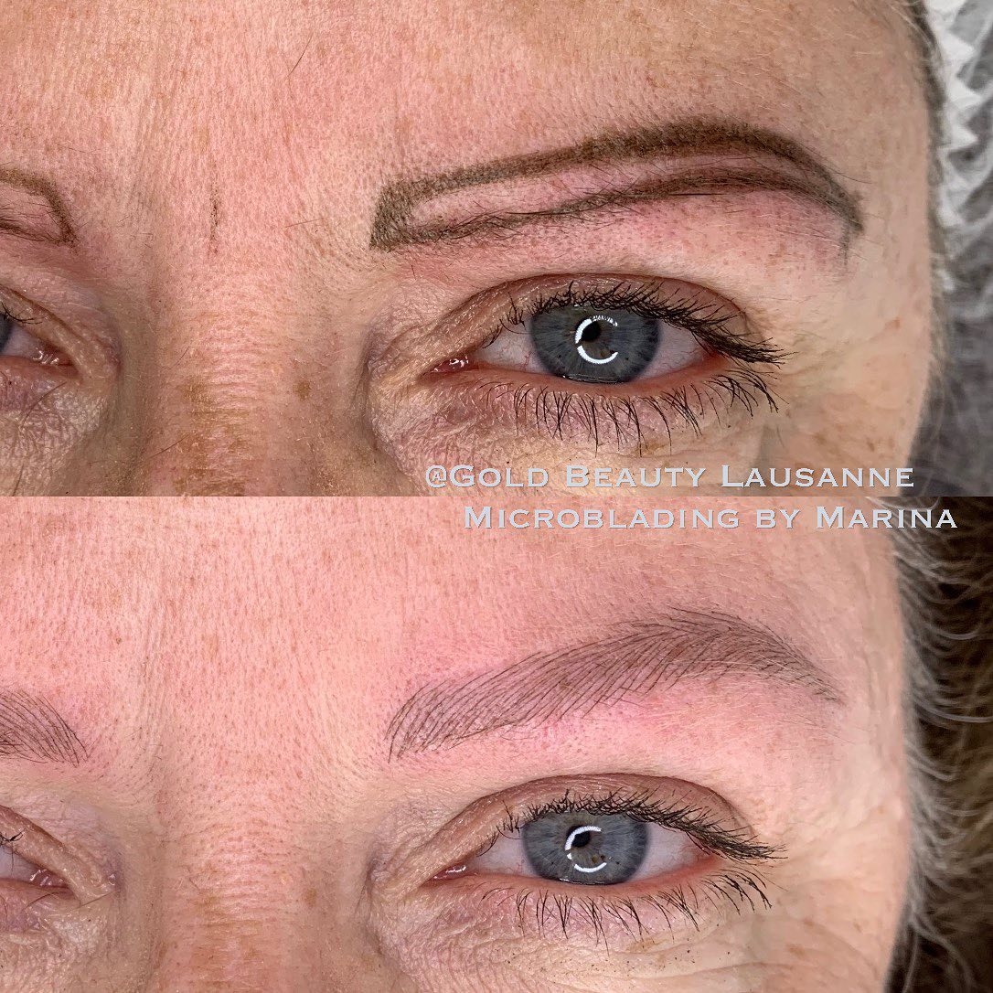 reconstruction sourcils