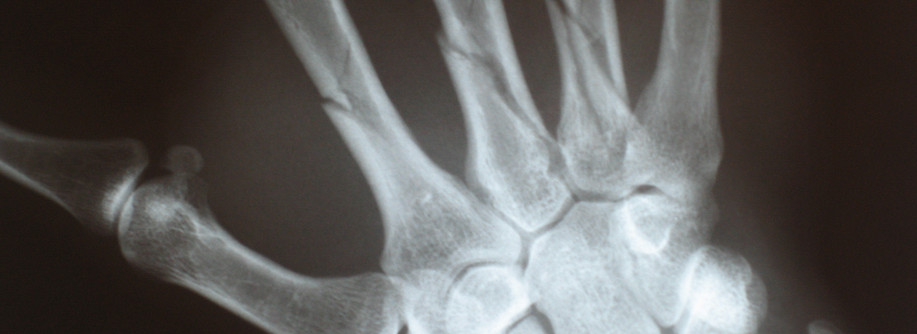 Case 5: Musculoskeletal Imaging