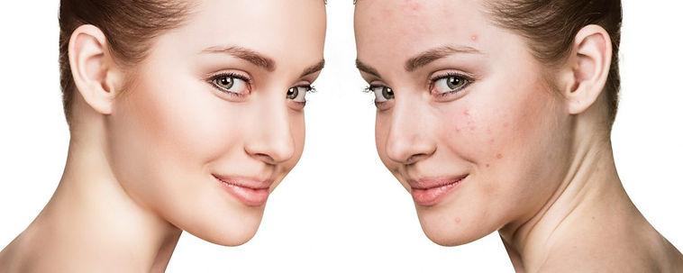 acne-facials.jpeg