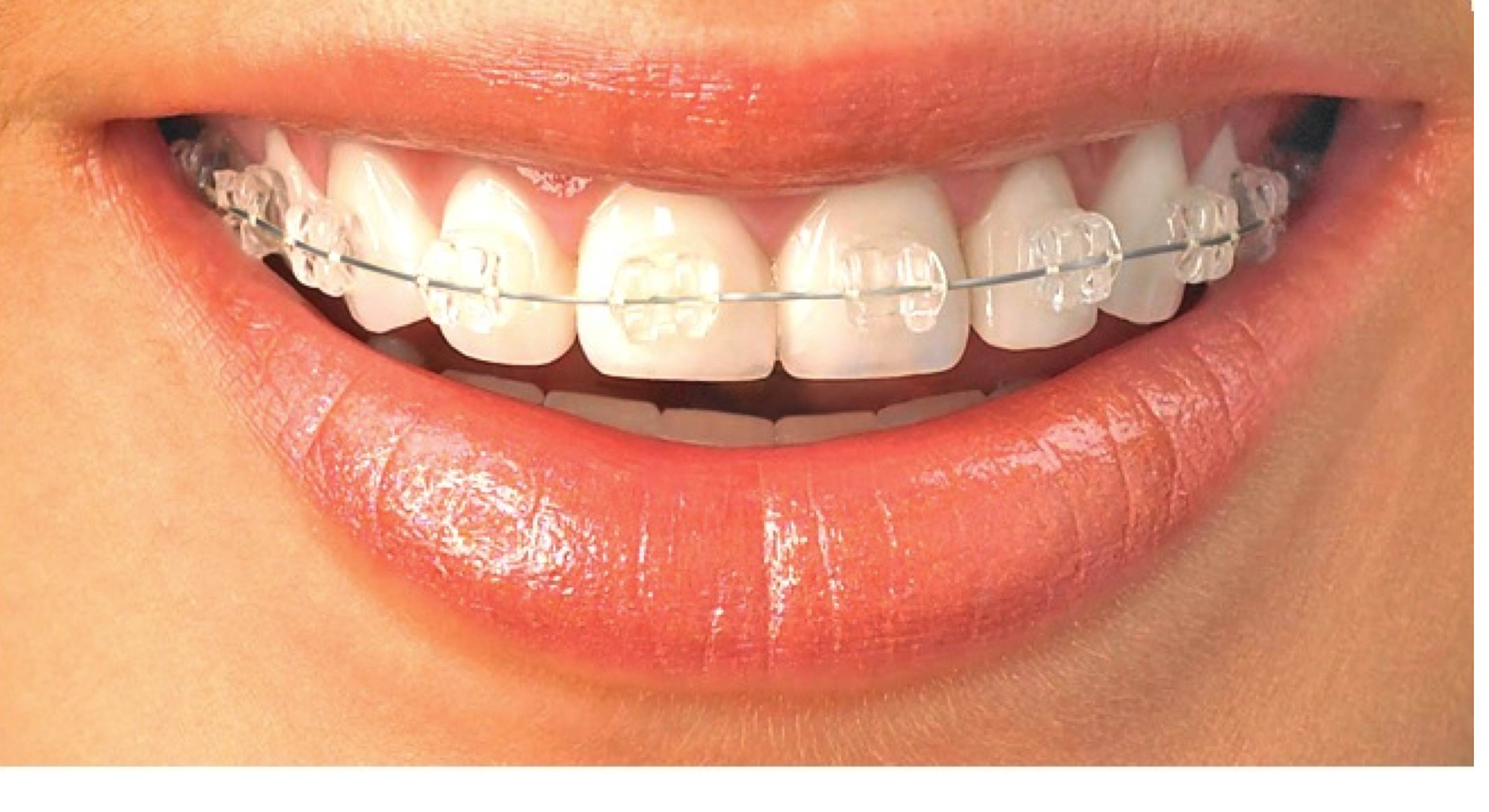 Ortodontia Bioprogressiva
