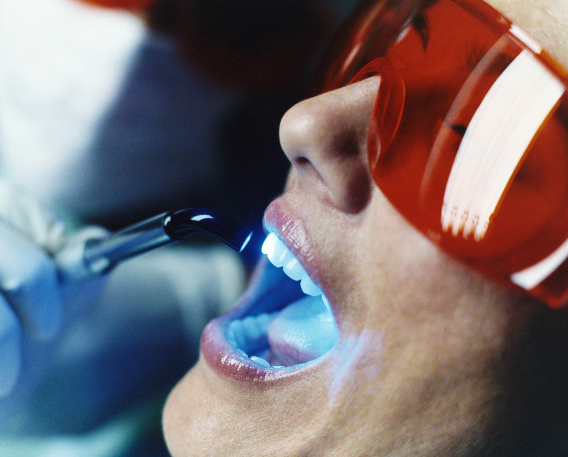 Branqueamento Dentário