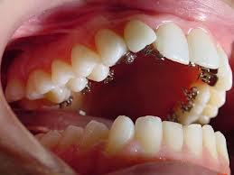 Ortodontia Invisível ou Lingual