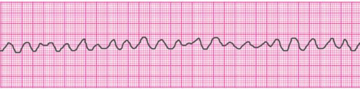 Ventricular Fibrillation (V-Fib)