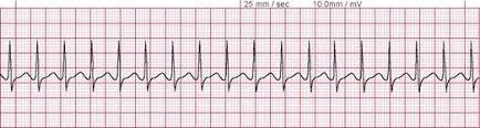 Supra-Ventricular Tachycardia (SVT)