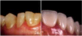 new smile with dental veneers.jpg