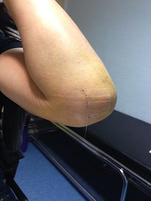 cubital coude ulnaire cicatrice