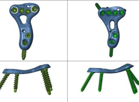 Fracture du radius en mini invasif. Le Dr Falcone conçoit la plaque de 5e génération avec Newclip