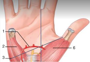 On peut constater la proximité entre l'arcade palmaire vasculaire et le nerf médian