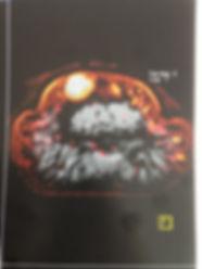 tumeur glomique IRM