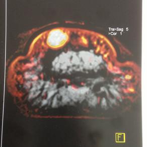 Tumeurs glomiques : le Dr Falcone publie la + grande série mondiale mono opérateur (+Video)