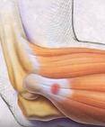 épicondylite tennis elbow