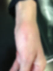 prothèse trapézométacarpienne cicatrice