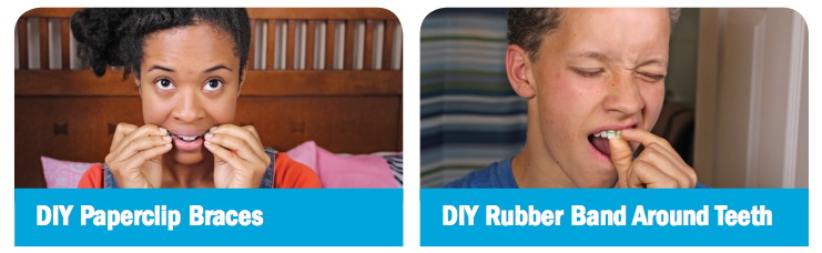 Examples of do-it-yourself orthodontic treatment including DIY paperclip braces and DIY rubber bands around teeth