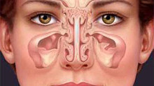 Sinusite Nasal