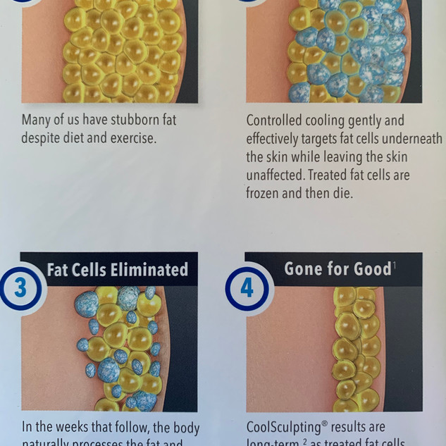 How Coolsculpting works