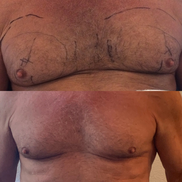 male chest contouring 12 weeks