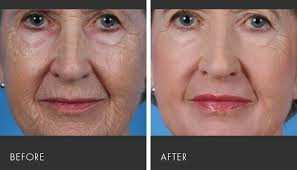 Winter is the time for laser resurfacing