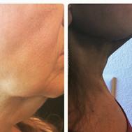 chin treatment 12 weeks