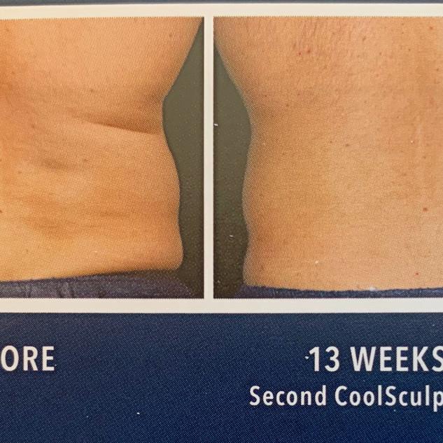 male-back fat