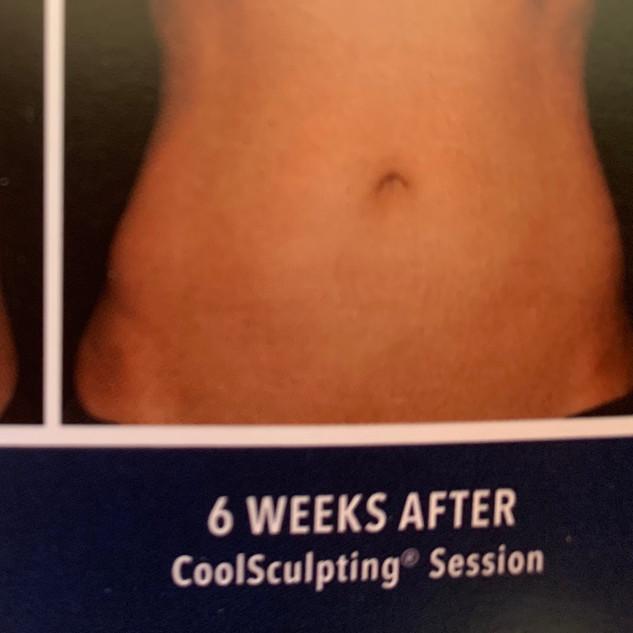 abdominal treatment