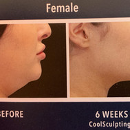 chin treatment female