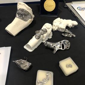 Teknologin har blivit allt mer tillgänglig att 3:d printa implantat för att ersätta bendelar eller skapa avgjutningar för perfekta snitt vid operationer.