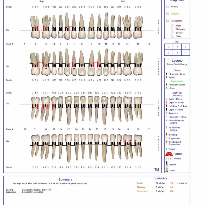 Periodontal Chart in Maintenance Th