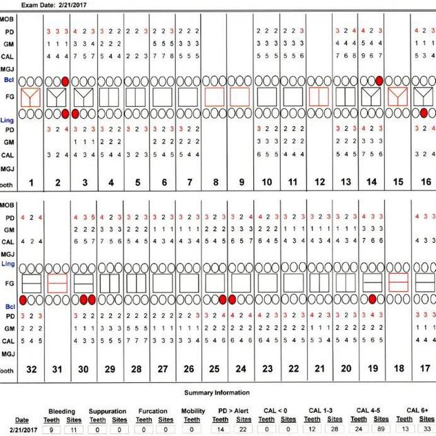 Chart 170221