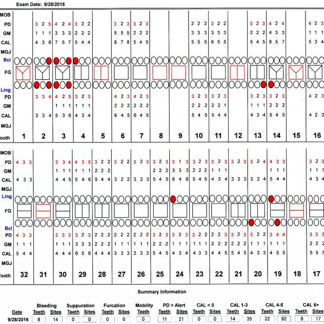 Chart 160928
