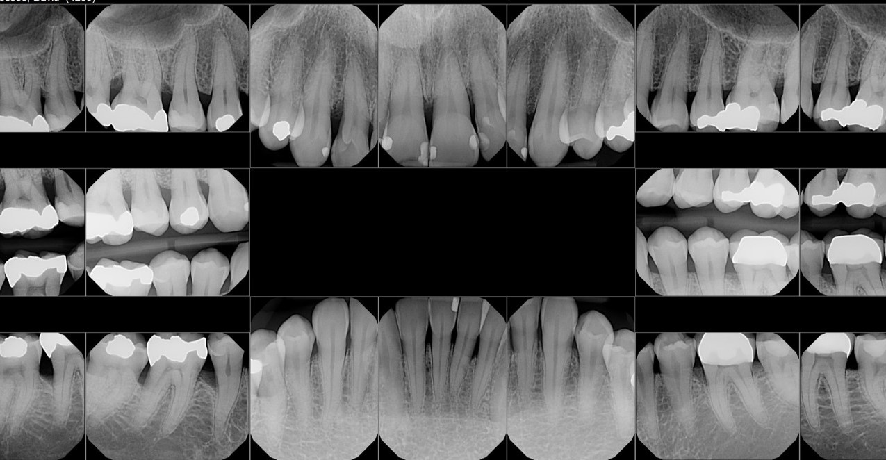 Full Mouth x-rays: November 10, 2016
