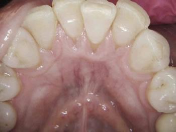 Post-Tx-2-wks-lower-anterior-sm