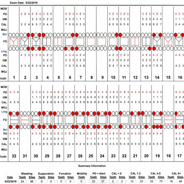 Chart 160622