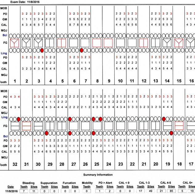 Chart 161108