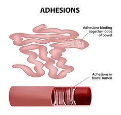 adhesions.jpg