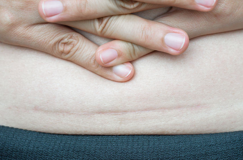 Scar Tissue Massage