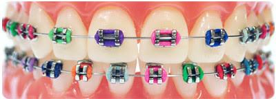 braces-metal.jpg