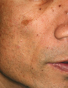 Skin blemishes caused by frequent exposure to the sun