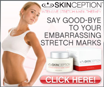 Banish stretch marks cream