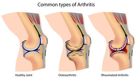 Healthy joints and arthritis joints comparison diagram