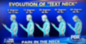 Text neck syndrome diagram